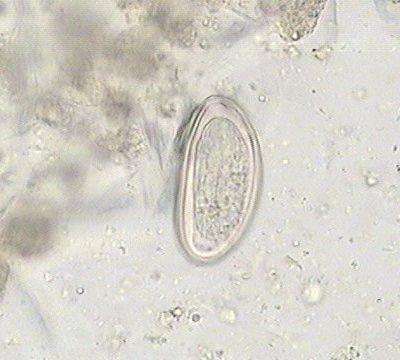 enterobius vermicularis oeuf)