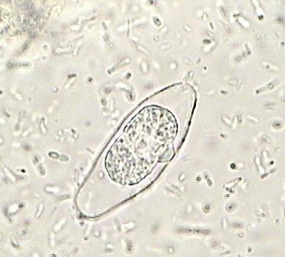 les protozoaires paraziti de l homme)
