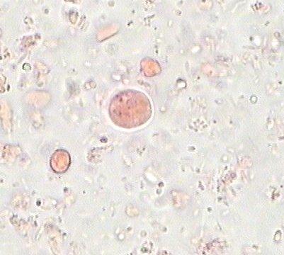 les protozoaires paraziti de l homme